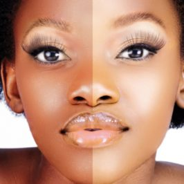 Sbiancamento della pelle: l'oscura piaga dell'Africa